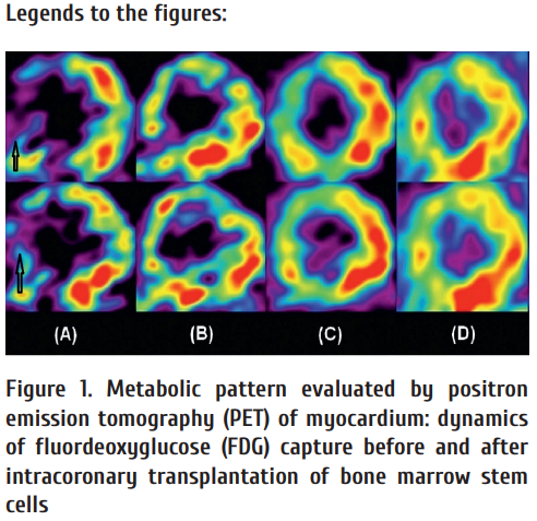 Figure_1_Metabolic_pattern_evaluated_by_positron_emission_tomography_PET_of_myocardium_dynamics_of_fluordeoxyglucose_FDG.png