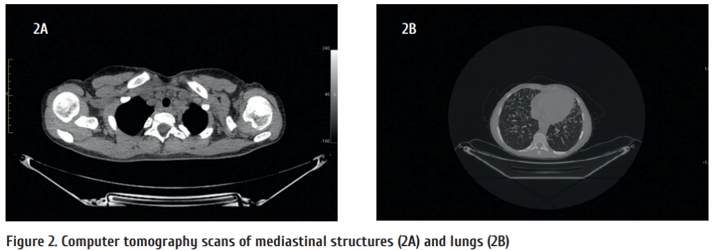 Figure_2_Computer_tomography_scans_of_mediastinal_structures_2A_and_lungs_2B.png